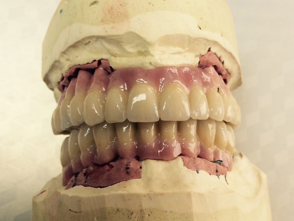Impression for the prosthesis on implants